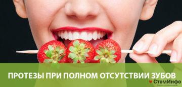 Протезы на имплантах при полном отсутствии зубов
