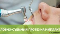 Условно-съемный протез на имплантах
