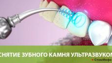 Снятие зубного камня ультразвуком: цены