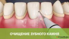 Очищение зубного камня