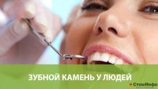Зубной камень у людей