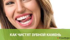Как чистят зубной камень