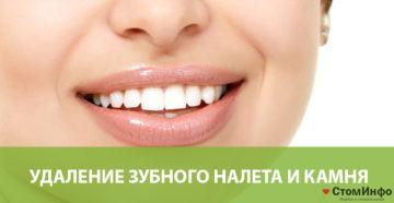 Удаление зубного налета и камня
