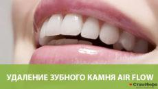 Удаление зубного камня Air Flow