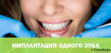 Имплантация 1 зуба: цена услуги