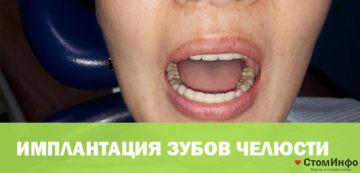 Имплантация зубов челюсти