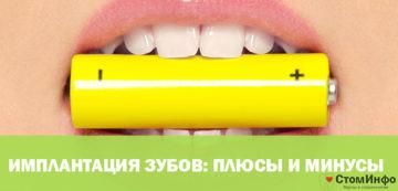 Имплантация зубов, плюсы и минусы