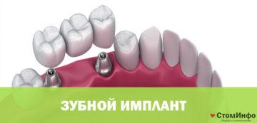 Как ставят имплант зуба: пошаговая инструкция
