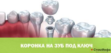 Koronka na zub pod klyuch
