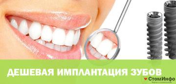 Самая дешевая имплантация зубов
