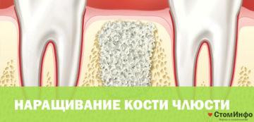 Стоимость наращивания кости челюсти под зубной имплант