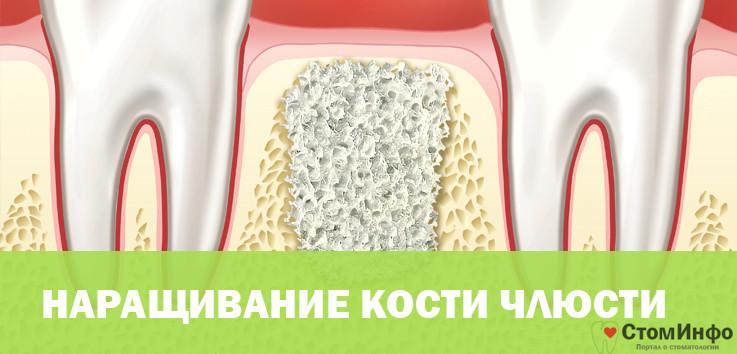 Увиличение кости челюсти имплант сколько стоит