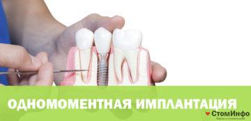 Цены одномоментной имплантации зубов