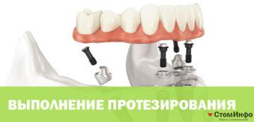 Цены протезирования зубов на имплантах