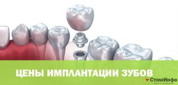 Цены имплантации зубов в стоматологии