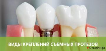 протезирование без обточки зуба