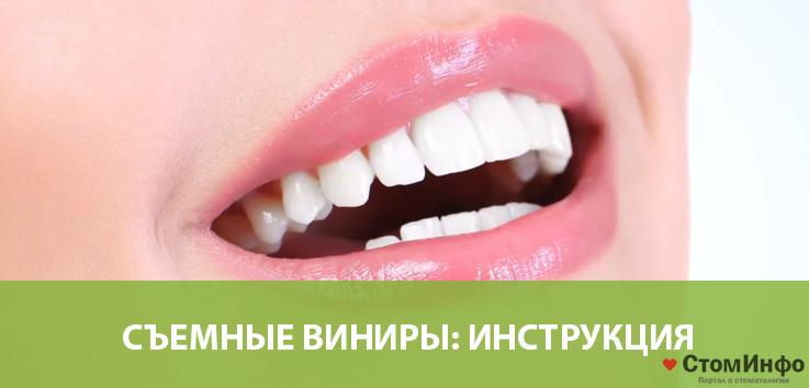 Съемные виниры накладки на зубы