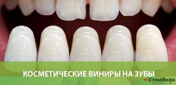 Косметические виниры на зубы