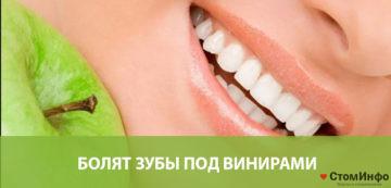Болят зубы под винирами