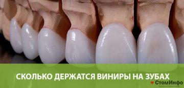 Сколько держатся виниры на зубах