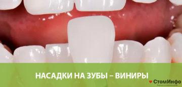 Насадки на зубы – виниры