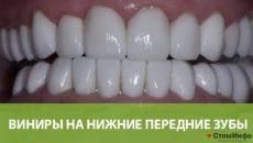 Виниры на нижние передние зубы