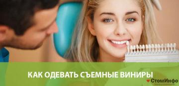 Виниры для зубов как одевать
