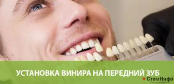 Установка винира на передний зуб