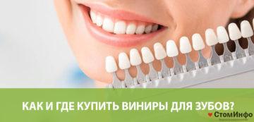 Как и где купить виниры для зубов?
