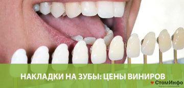 Накладки на зубы: цены виниров