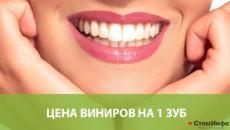 Цена виниров на 1 зуб