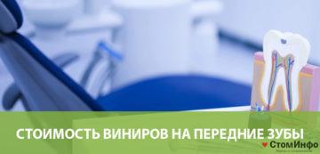 Стоимость виниров на передние зубы в Москве