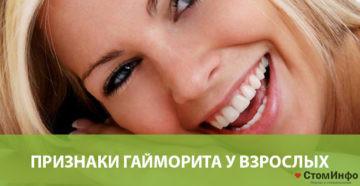 Признаки гайморита у взрослых: симптомы