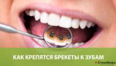 Как крепятся брекеты к зубам