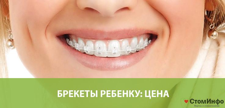 Стоимость установки брекетов на 2 челюсти: цены в Москве