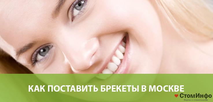 Как поставить брекеты в Москве