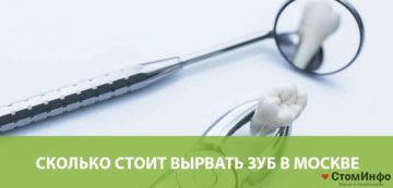 Сколько стоит вырвать зуб в Москве