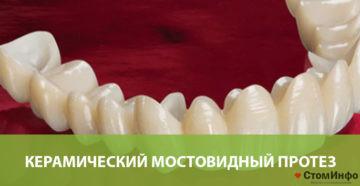 Керамический мостовидный протез