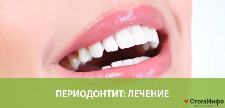 Как лечить периодонтит зуба в домашних условиях