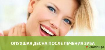 Опухшая десна после лечения зуба