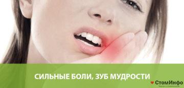 Сильные боли, зуб мудрости