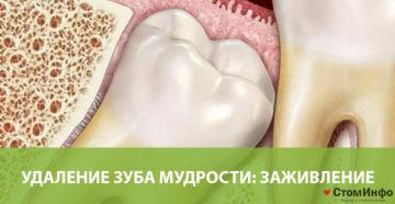 Удаление зуба мудрости: заживление