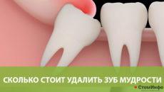 Сколько стоит удалить зуб мудрости в Москве