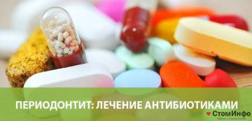 Периодонтит: лечение антибиотиками