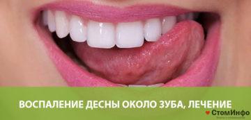 Воспаление десны около зуба, лечение