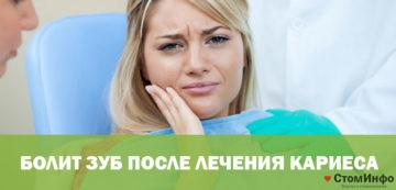 Болит зуб после лечения кариеса