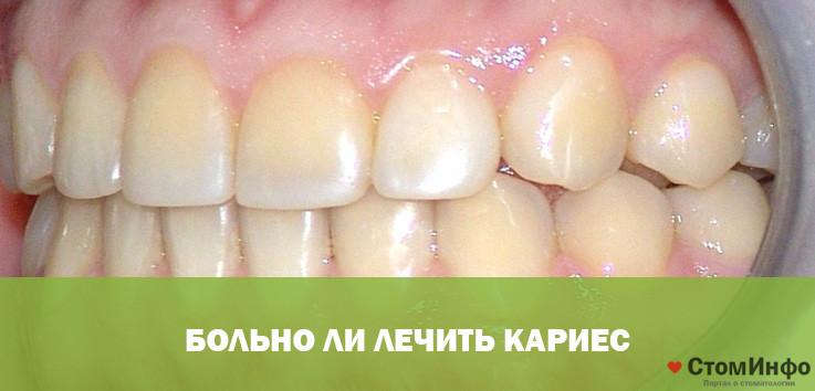 Лечение зуба без боли безболезненно ли это когда сверлить при кариесе больно