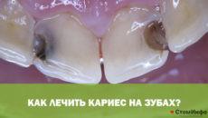 Как лечить кариес на зубах