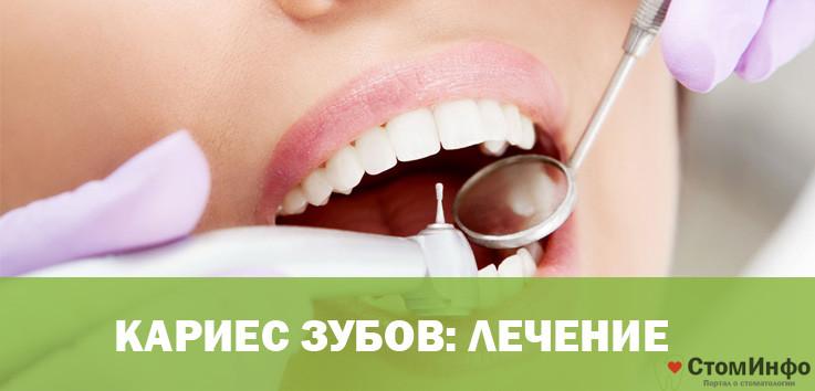 Чем можно убрать кариес с зубов
