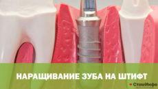Наращивание зуба на штифт